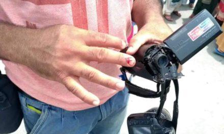 Police beat up Rising Kashmir lensman in Barzulla