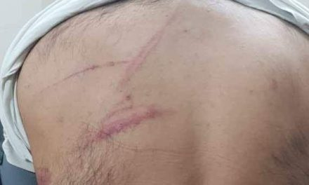 Kashmiri student attacked with knife, iron rods in Chandigarh