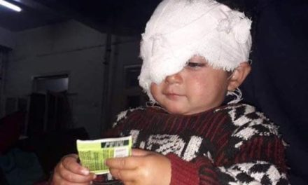 Rs 1 lakh assistance provided to pellet victim Hiba