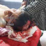 Stray dogs mauls minor boy In Kangan